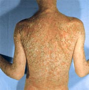 psoriasis symptoms can cover the whole back
