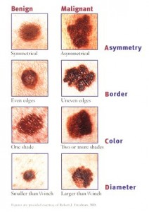 melanoma diagnosis skin cancer photos