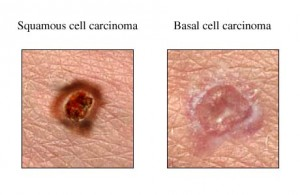 basal cell carcinoma coffee reduces risk of skin cancer