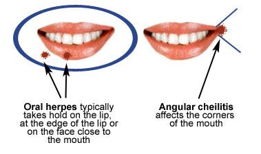 oral herpes versus angular cheilitis