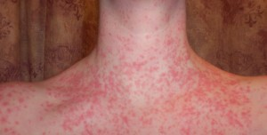guttate psoriasis symptoms