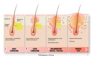 acne vulgaris causes stress