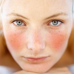 rosacea causes red rash across centre of face