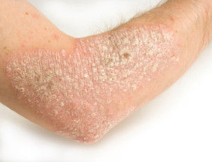 psoriasis lesions on arm scales skin