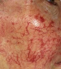 spider veins on face