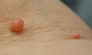 skin tags and diabetes keratosis pilaris